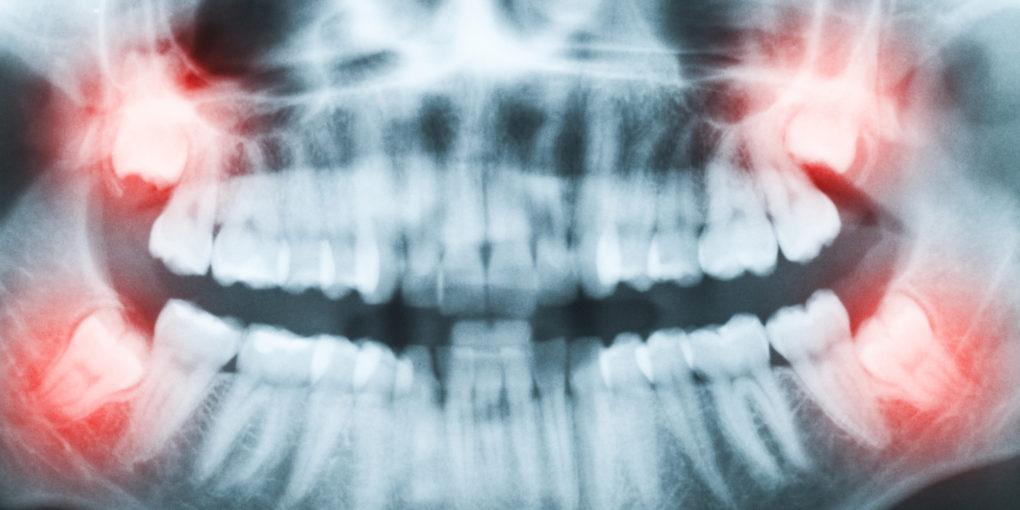Wisdom teeth of a spiritual person